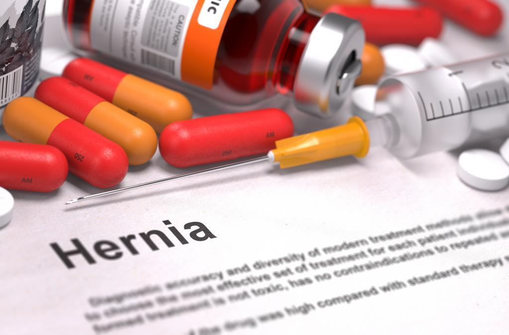 The Complete Guide To What's Causing Your Hernia - Dr  Ata
